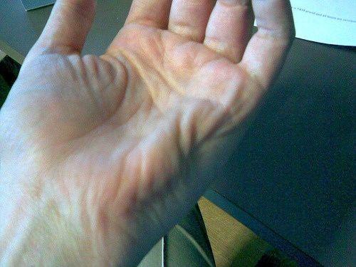Calambres musculares, ¿sabes combatirlos? Los calambres musculares –científicamente los espasmos musculares- es algo que casi todos hemos sufrido alguna vez en nuestra vida.