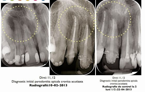 Periodontics. Chronic periodontitis. Dental clinical cases in dental offices Romania. Visit medical tourism website to see clinics and costs  for dental treatments. http://www.intermedline.com/dental-clinics-romania/ Contact: office@intermedline.com ; phone: +1 518 620 42 25