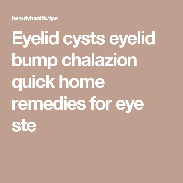 Eyelid cysts eyelid bump chalazion quick home remedies for eye ste