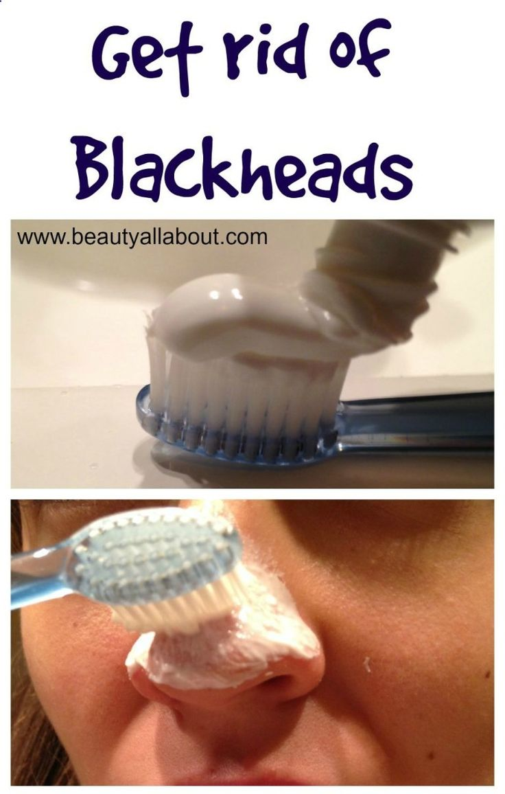 Get rid of blackheads with toothpaste