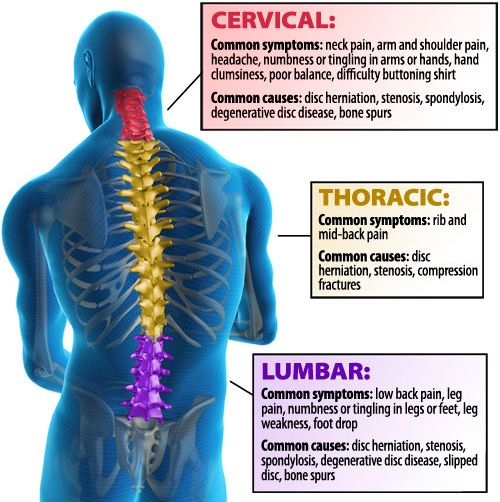 Post-laminectomy syndrome refers to cervical, or lumbar, pain with an unknown cause that can persist despite attempting surgical intervention or that emerges following surgery. This condition is associated in particular with back surgery, which is also known as a post-laminectomy syndrome.