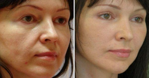 Со временем наша кожа теряет упругость и эластичность, как следствие — четкий контур лица исчезает. Могут появиться мешки под глазами, второй подбородок, а также обвисшие щеки. Поэтому уход за кожей лица не стоит откладывать в долгий ящик. Обвисшие щеки Предотвратить, а также остановить процессы с
