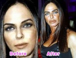 Priscilla Presley plastic surgery pictures - before & after
