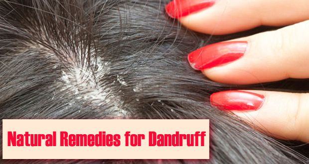 3 Natural and Healthy Dandruff Remedies