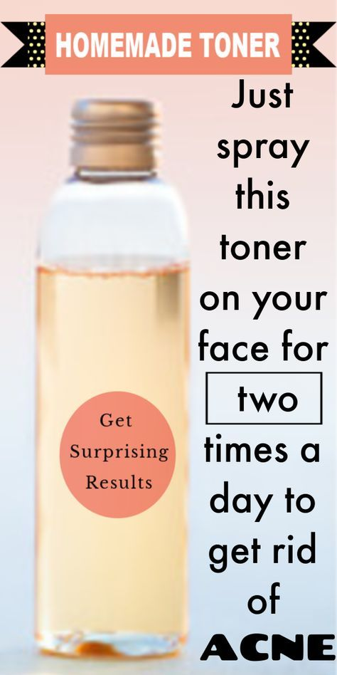 Homemade Toner for Acne Prone Skin