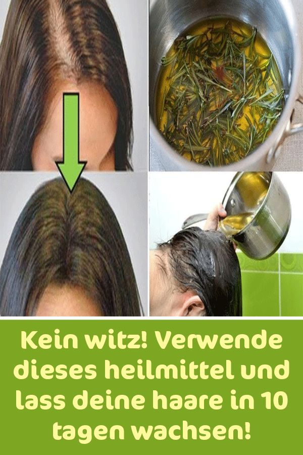 Kein Witz! Verwende dieses Heilmittel und lass deine Haare in 10 Tagen wachsen – Silvia Kindermann