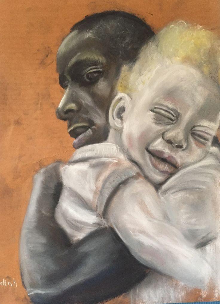 African albino son