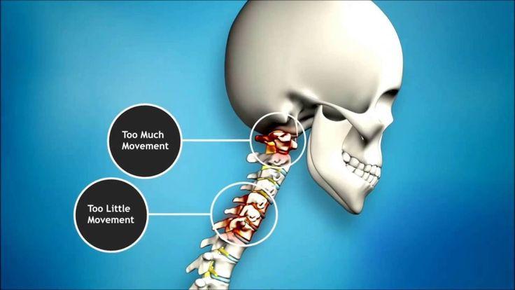 Chiropractor Kempton Park https://youtu.be/AR70If76jYc