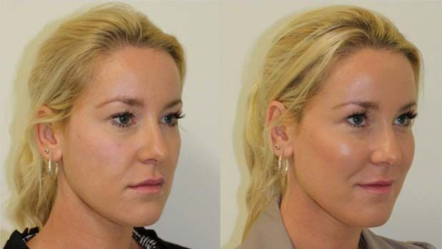 Before and after revolumising fillers to the mid face