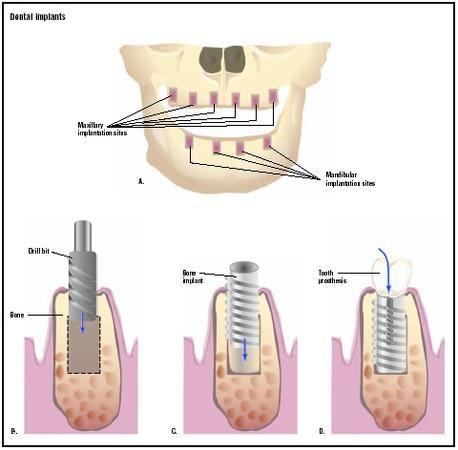 Dental implants offer a permanent solution for your missing teeth.