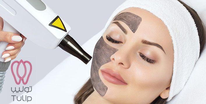 تقشير هوليود أو ليزر هوليود او الليزر الكربوني Sleep Eye Mask Mask Eye Mask