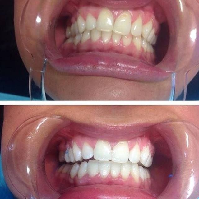 www.gleamingsmiles.com.au info@gleamingsmiles.com.au Amazing results Happy client