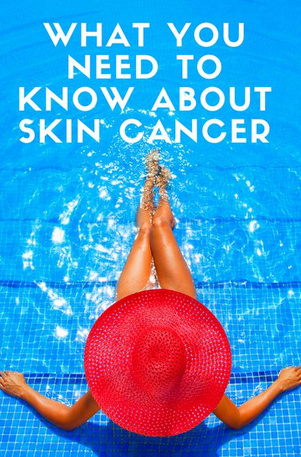 Everything you need to know about Skin Cancer. Skin cancer is the most common type of cancer in the United States and the most treatable, if caught early. There are several types of skin cancer.