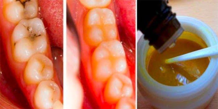 Genees gaatjes natuurlijk en genees tandbederf met deze krachtige tanden maskers
