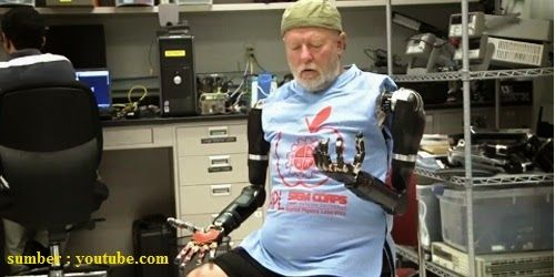 Teknologi Tangan Palsu Robotik dengan Kekuatan Pikiran