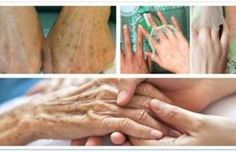 ¿Tienes manchas en la piel? Toma en cuenta estos tips para desaparecerlas