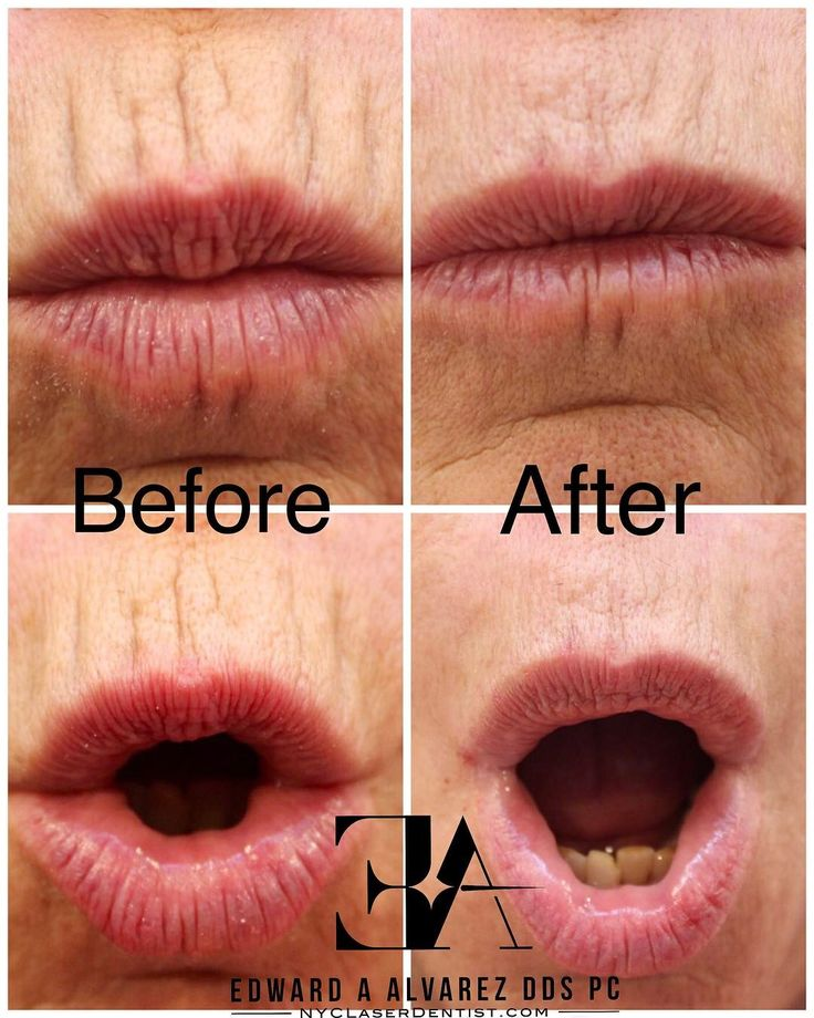 "82 Likes, 5 Comments - Dr. Edward Alvarez DDS, CaC (@nyclaserdentist) on Instagram: ""Immediate improvement of perioral (smokers) lines by the use of #Volbella. A simple, painless…"""