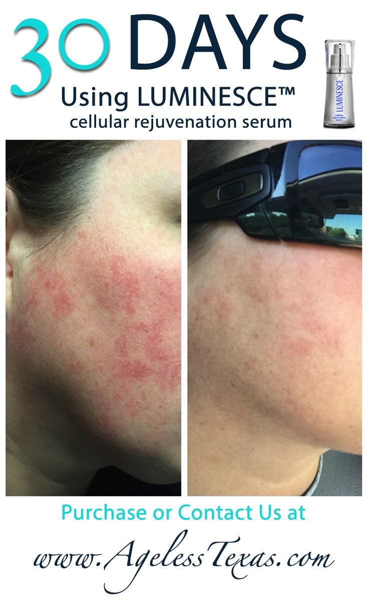 LUMINESCE™ cellular rejuvenation serum is AMAZING!  http://jlovejoy.jeunesseglobal.com/products.aspx?p=LUMINESCE
