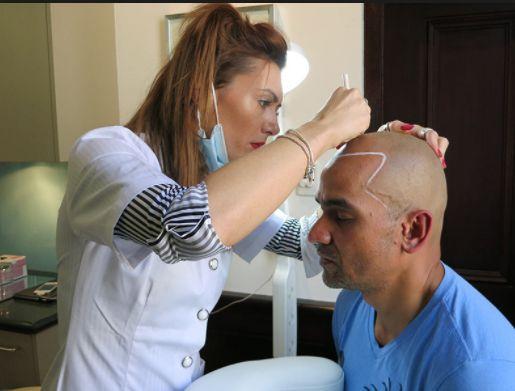 Scalp Micropigmentation aftercare tips -Sensitive Care Tips