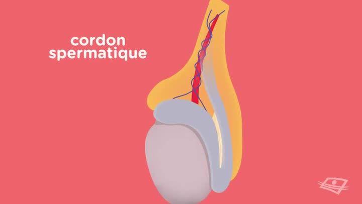 La torsion testiculaire