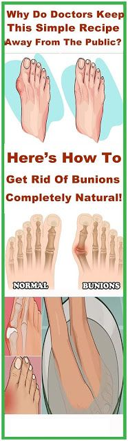 Why do doctors keep this simple recipe away from the public? Here's how to get rid of bunions completely natural!