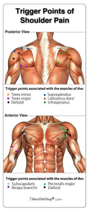 326 best images about Trigger Points in the Body on ...