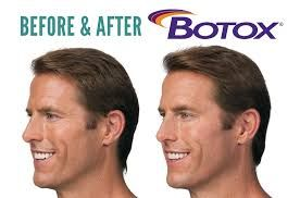 Botox is the most well-known wrinkle management therapy that is available in the market. It is used to improve the appearance of moderate to severe wrinkles and fine lines, especially between the eyebrows, around the eyes, and the forehead. This derivative of the botulinum toxin exerts a temporary paralyzing action on the muscles that are directly underlying the wrinkles to make them more subtle, and less pronounced.