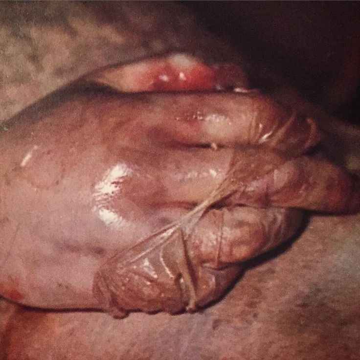 Skin slippage. If a person dies and is not either put into refrigeration quickly after death or embalmed, the body begins to decompose. Sometimes blistering of the skin happens, in which the top layer of the skin (epidermis) separates from the bottom layer of skin (dermis) and there is fluid accumulation. These blister like areas can become very large and when they are ruptured or popped, this is the result. The skin actually has completely separated from itself. This layer of sloughed skin…