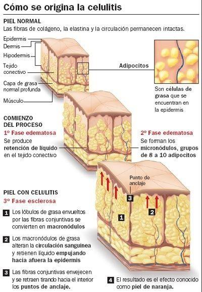 👌consejos para la eliminación de la celulitis: BEBIDAS