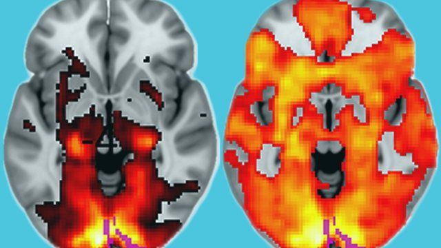 the effects of certain drugs These drugs affect some of the  how does drug addiction affect the functioning of  pet scans provide information about the metabolic activity in a certain.