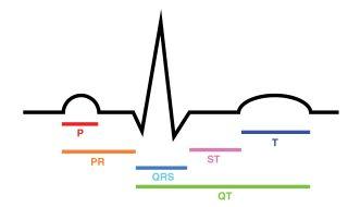 The ECG complex. P=P wave, PR=PR interval, QRS=QRS complex, QT=QT interval, ST=ST segment, T=T wave