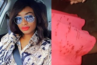 Former Miss Earth Nigeria Marie Miller narrates how she was attacked by a traffic robber in onipan Lagos (photos) http://ift.tt/2gIRZ18