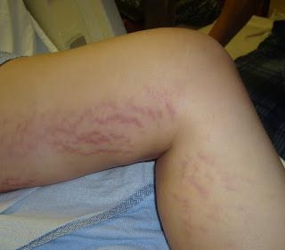 Stretch Marks on Thighs - Top 7 Ways to Get Rid of Thigh Stretch Marks!
