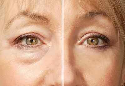 #Eye Bags #Causes, #Symptoms And #Treatment