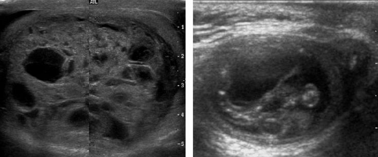 Mature cystic teratoma. (a) Composite Image. Mature cystic teratoma in a 29 year-old man. Longitudinal sonography image of the right testis shows a multilocular cystic mass. (b) Mature cystic teratoma in a 6 year-old boy. Longitudinal sonography of the right testis shows a cystic mass contains calcification with no obvious acoustic shadow