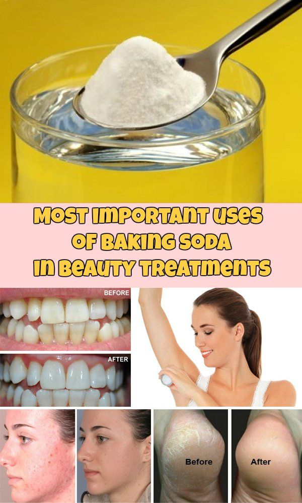 Most important uses of baking soda in beauty treatments - WeLoveBeauty.org