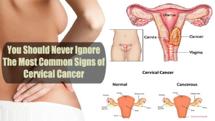 4 Warning Signs and Symptoms of Ovarian Cancer You Shouldn't Ignore. - WATCH VIDEO HERE -> http://bestcancer.solutions/4-warning-signs-and-symptoms-of-ovarian-cancer-you-shouldnt-ignore    *** ovarian cancer symptoms ***   4 Warning Signs and Symptoms of Ovarian Cancer You Shouldn't Ignore. How do you know if you have ovarian cancer?►► Symptoms of ovarian cysts may include: Pelvic pain. Pain shortly before or after beginning your period. Pressure, swelling or pain