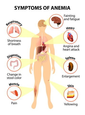 Symptoms Of Anemia  http://www.draxe.com #health #holistic #natural