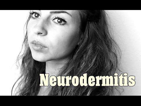 Neurodermitis Ernährung - Worauf achten? - Gesundheits.net