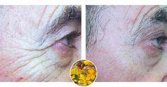 L'Olio di Iperico – Il prodotto antirughe più potente che esiste in natura. - http://frasideilibri.com/olio-di-iperico-rimedio-naturale-antirughe-scottature-pelle-screpolata/