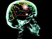 Aumenta la actividad cerebral antes de morir