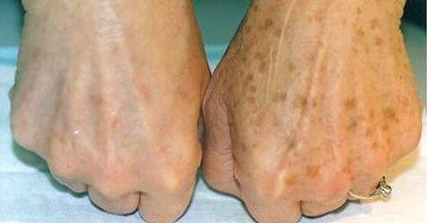 Как удалить коричневые старческие пятна легким и естественным путем.