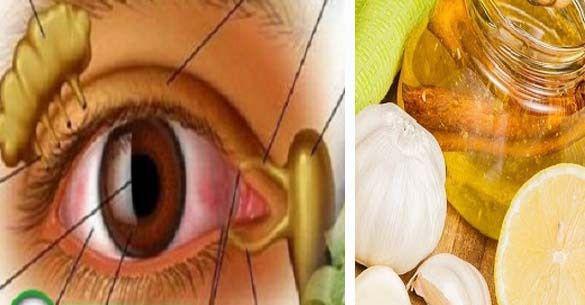 A mai cikkből megtudhatod, hogyan javíthatod a látásodat természetes módon. Ez a módszer ezen kívül megfiatalítja a bőrt a sze...