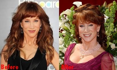Kathy Griffin face plastic surgery before and after pictures...