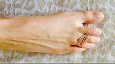 2 parmağınızı Bu Şekilde Bağlayın Hayatınız Kurtulsun..uzun süre topuklu ayakkabı gıyınce olusan agrıdan böylece kurtuluyormusuz