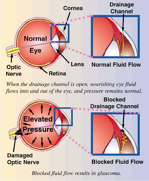 Pressure In Optic Nerve Natural Remedies