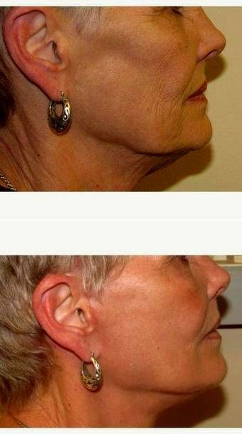Dr. Stacy Peterson, MD, Wichita Plastic Surgeon 65-74 Year Old Woman Treated With Facelift