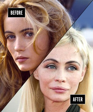 These Hollywood beauties are unfortunate examples of plastic surgery gone terribly wrong