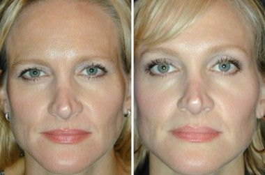 Botox Browlift - Is always a nice gift for those family members that are alaways complaining of a droopy eyelid