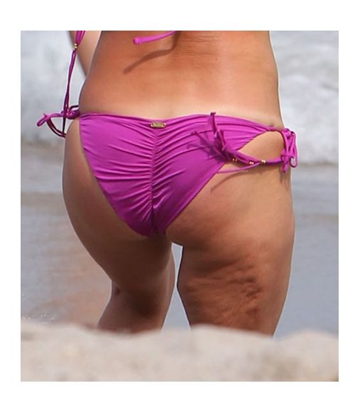 40 Celebrities with cellulite   Pictures  